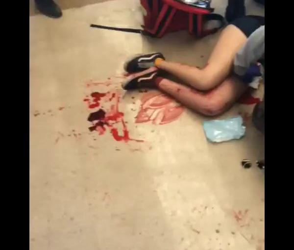 Estudiante se desangra al recibir impacto de bala en unapierna